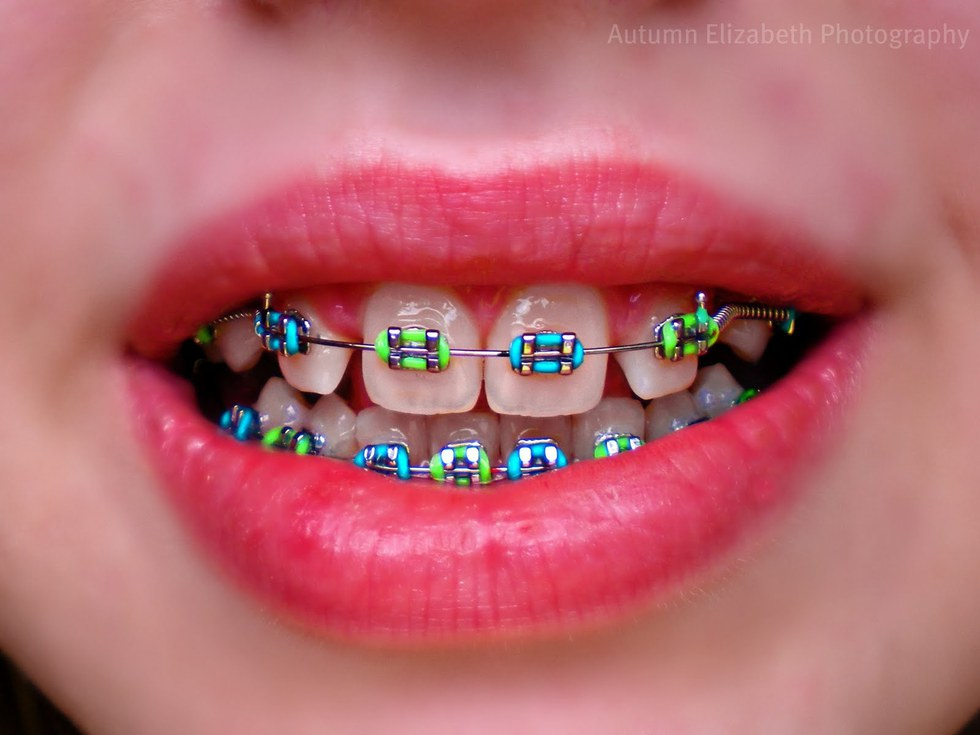 6 Reasons Why Braces Suck